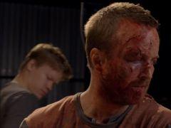 Jesse—Bloody Face